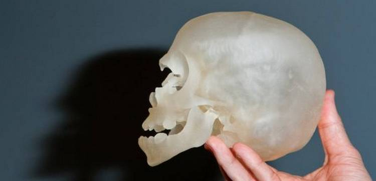 Aplicación de las impresoras 3D en medicina
